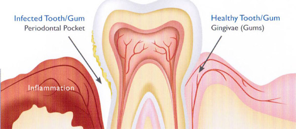 Healthy vs. Unhealthy gums - Symptoms of gum disease