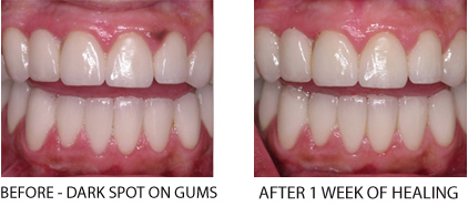 Patient before & after laser treatment of dark spots on gums in Manhattan
